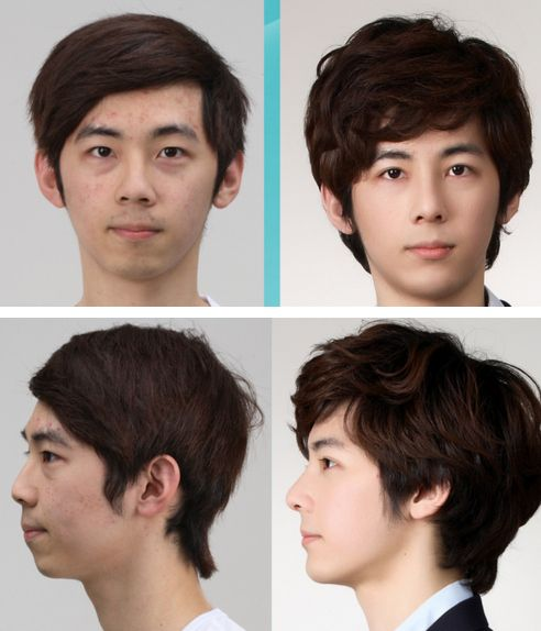 31 Crazy Before And After Photos Of Korean Plastic Surgery Korean Plastic Surgery Plastic Surgery Pictures South Korean Plastic Surgery