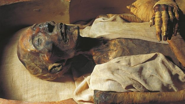 Image result for cancer in egyptian mummy pic