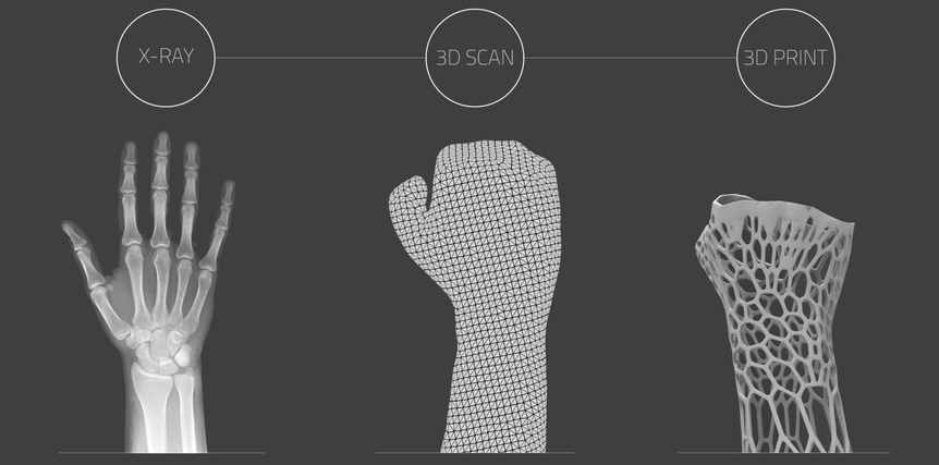 Ferula Creada Con Impresión 3d Para Una Recuperación Mas Rápida Impresiones En 3d Impresion 3d Impresionismo
