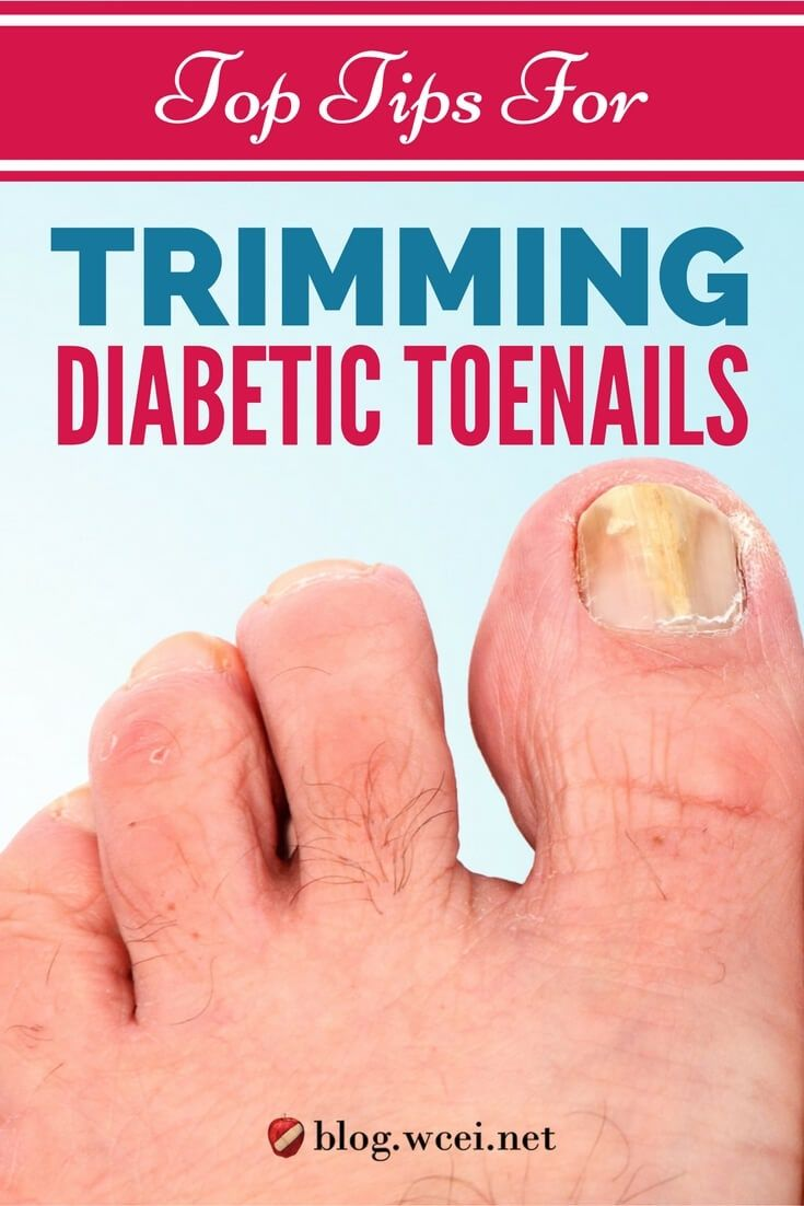 Check out these best practices for trimming your diabetic patient\'s ...