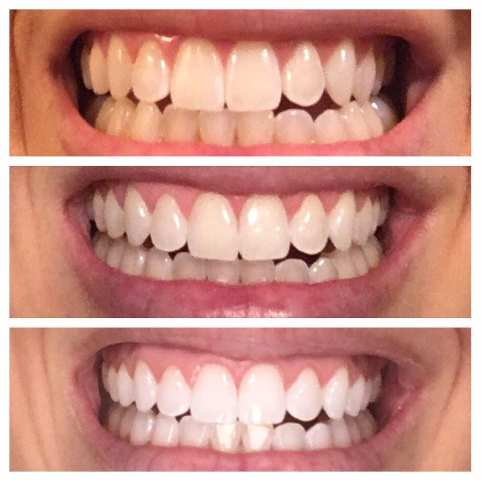 Pin On How To Whiten Your Teeth