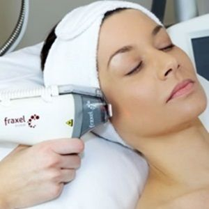 How To Make Your Skin Spotless With Fraxel Laser Ladyzona Com Laser Treatment Body Contouring Surgery Cosmetic Dermatology