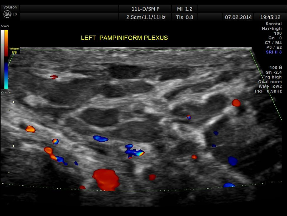 whirlpool sign in testicular torsion. pampiniform plexus ultrasound - google search whirlpool sign in testicular torsion