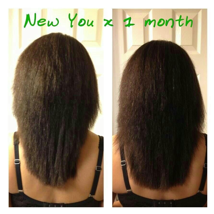 Hair growth one month after using New You! ItWorks! http