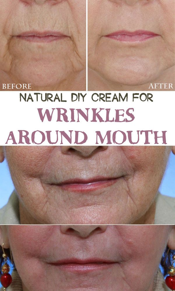 how to get rid of wrinkles around mouth and chin