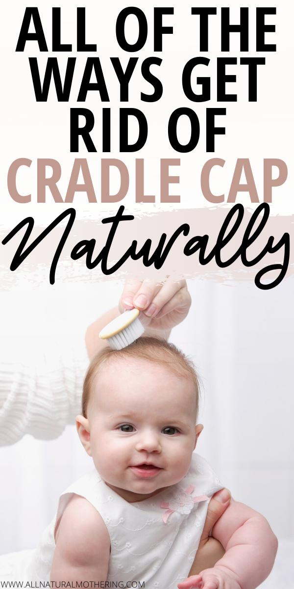 Natural Cradle Cap Remedies That Work Like A Charm In 2020 Cradle Cap Remedies Cradle Cap Remedies Baby Cradle Cap