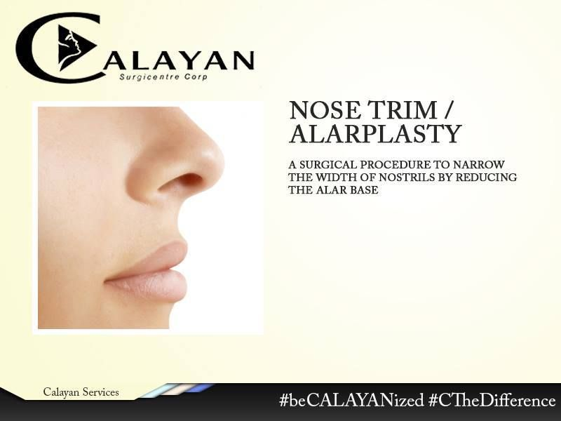 Unhappy with your wide nose and overhanging nostrils? Let Calayan