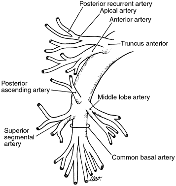 Right pulmonary artery branches   Thoracic Surgery   Pinterest