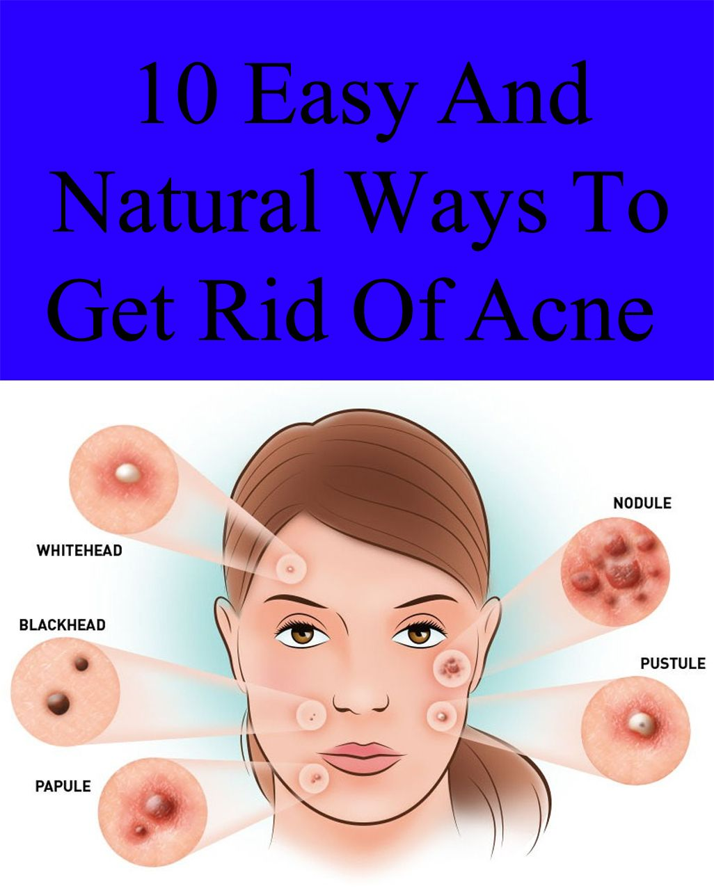 10 Easy And Natural Ways To Get Rid Of Acne How To Get Rid Of Acne Acne Scar Removal Acne