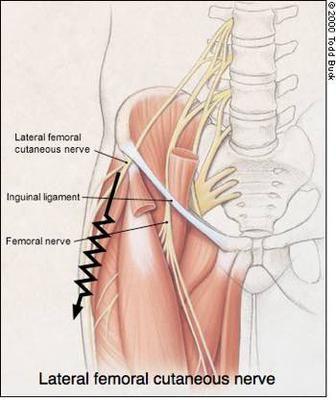 Pin On Body Hernia