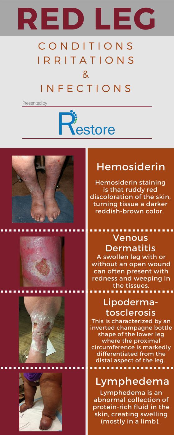 RED LEG (1) Diabetes support, Irritated, Legs