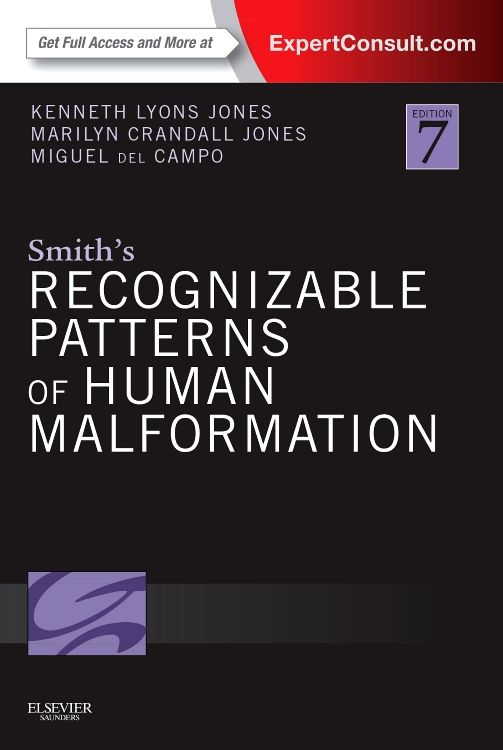 Smith S Recognizable Patterns Of Human Malformation 7th Edition Isbn 9781455738113 Will Smith Hardcover Book Books