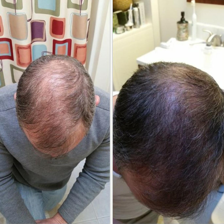 Très Repousse cheveux pour homme. www.josianne.mymonat .com / www  US96