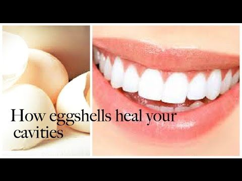 Diy Homemade Eggshell Tootpaste Heal Cavities Cavities Homemade Remedies