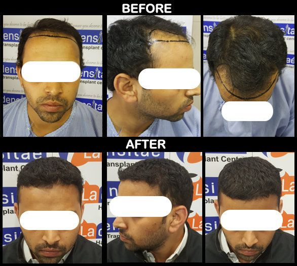 Best hair transplant clinic in pune   hair transplant results Gallery