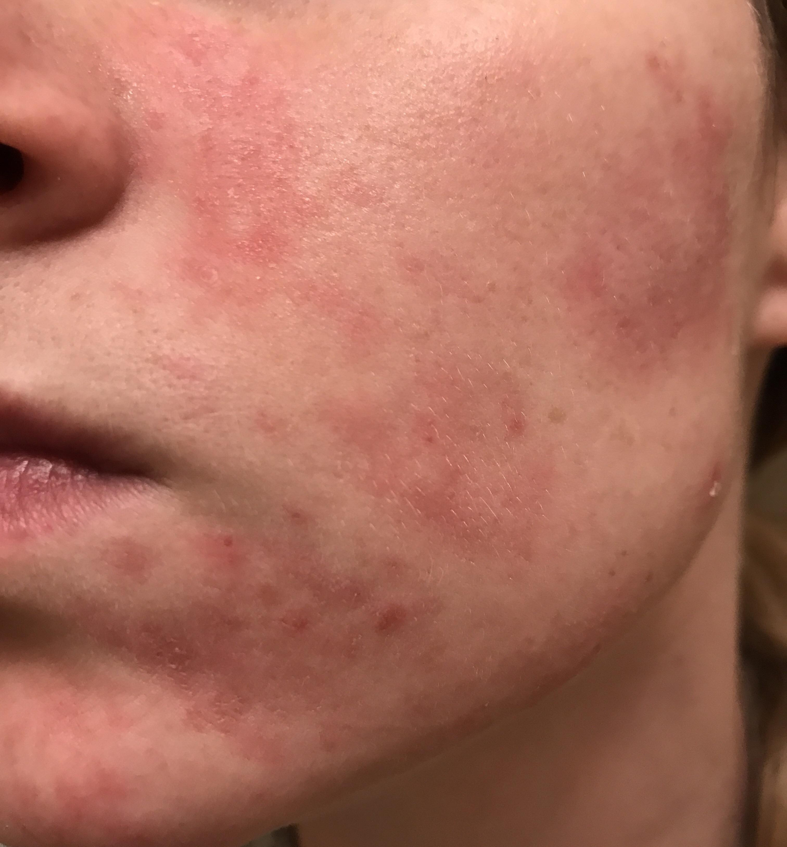 Skin concerns my skin is red raw dehydrated and damaged from