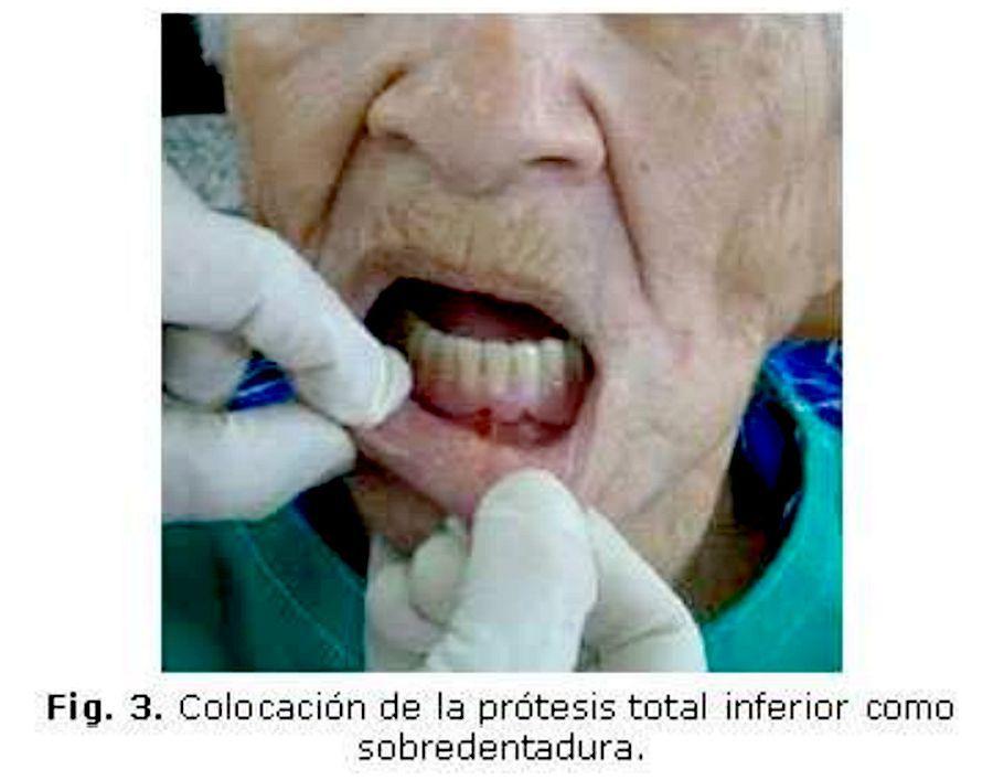 Rehabilitacion-protesica