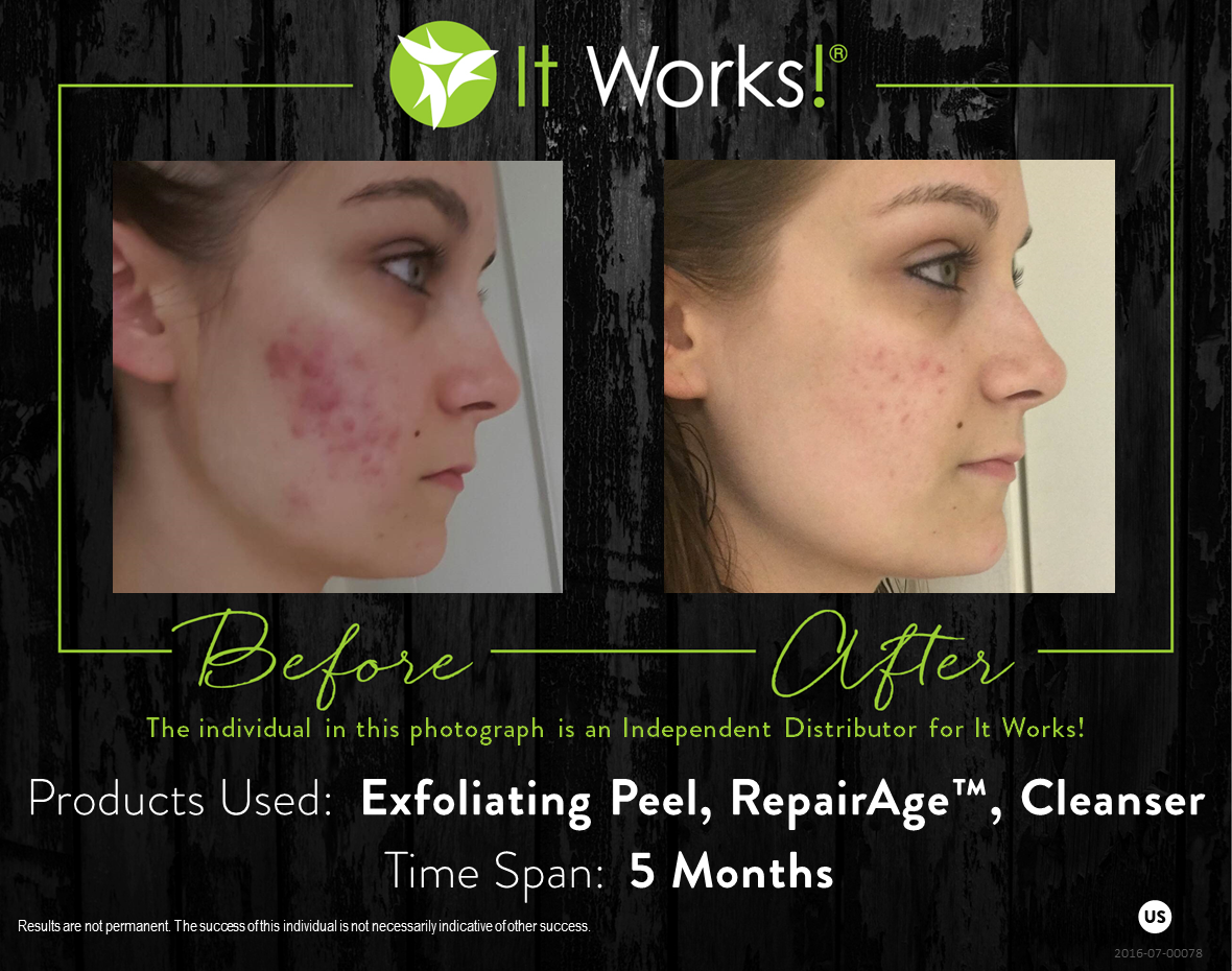 Love Your Skin With Our Unique Blend Of Botanicals And Herbs Found In Our Skincare Exfoliating Peel It Works Products Chemical Peel