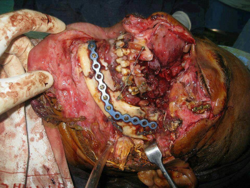 Oral Maxofacial Surgery 86