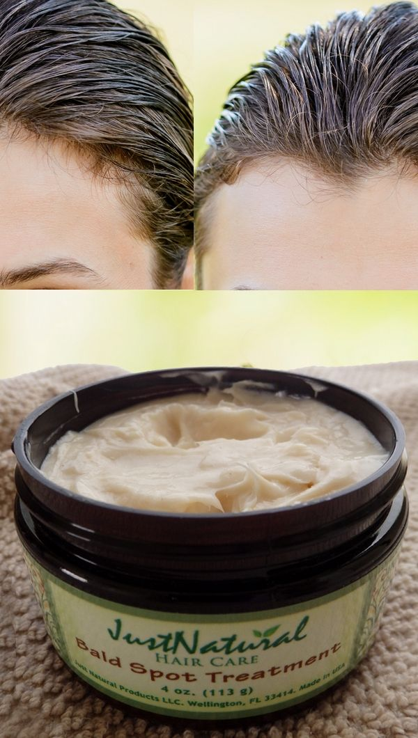 Bald Spot Treatment Use When Experiencing Early Stage Male Or Female