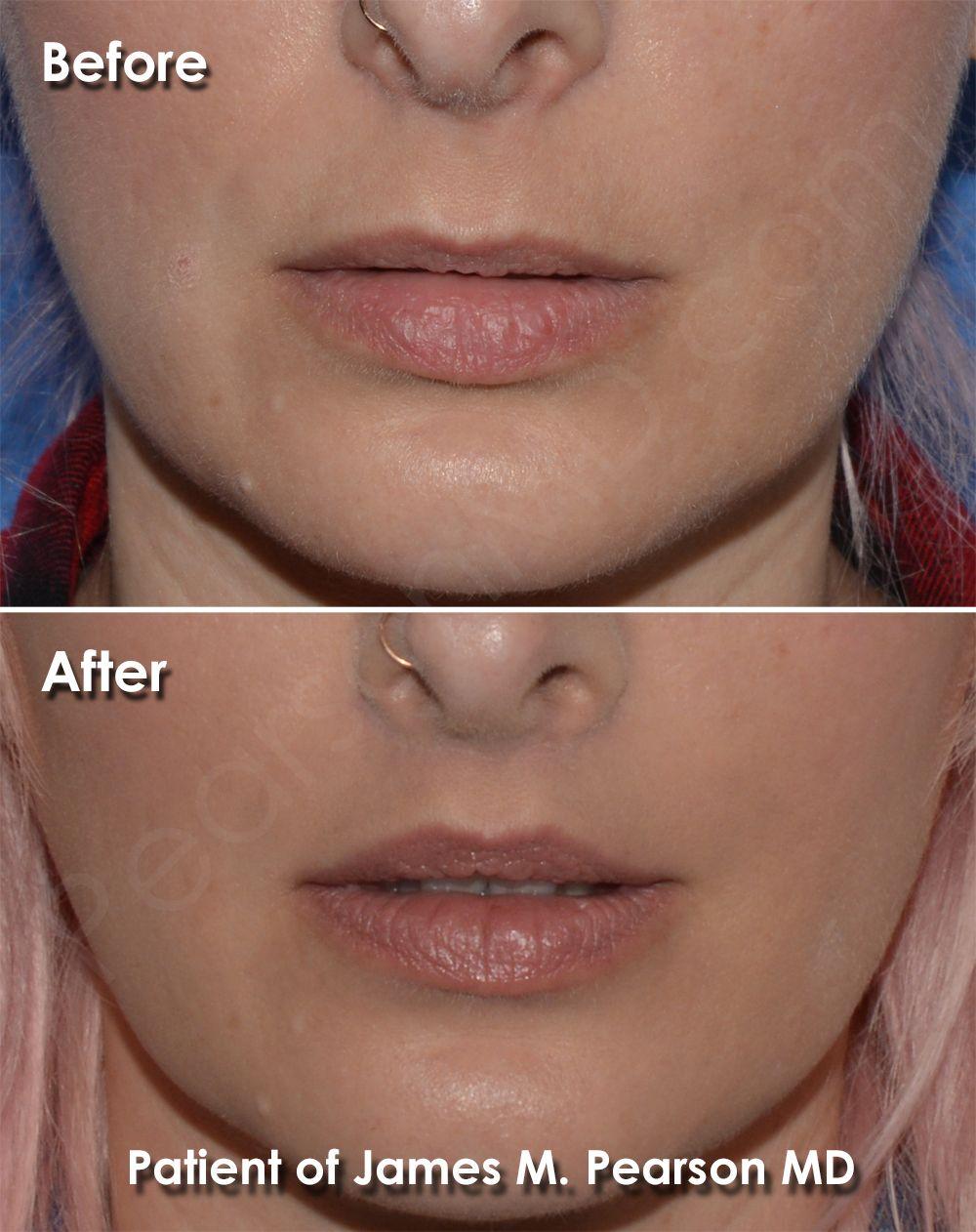 Photo Lip Lift by Dr. James Pearson Facial Plastic Surgery