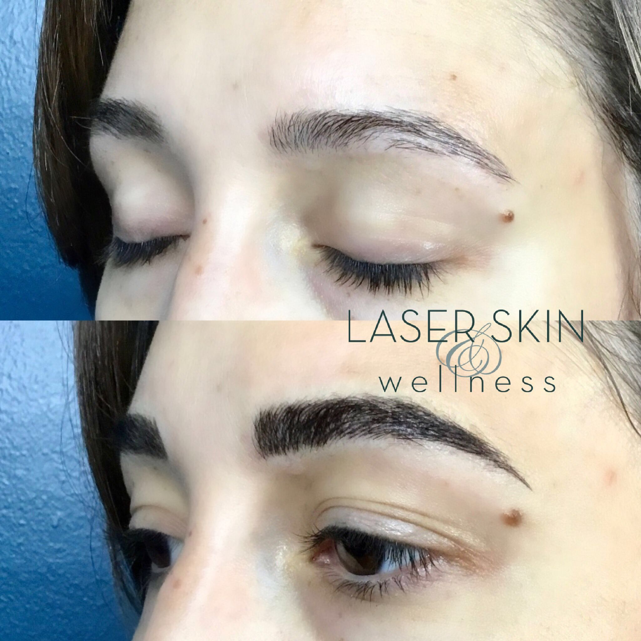 74e21cb175e7374e3190037cad8649ac - Beauty To Go Lasers Palm Beach Gardens