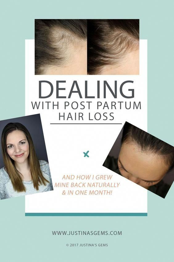 Natural Remedies For Thinning Hair Female