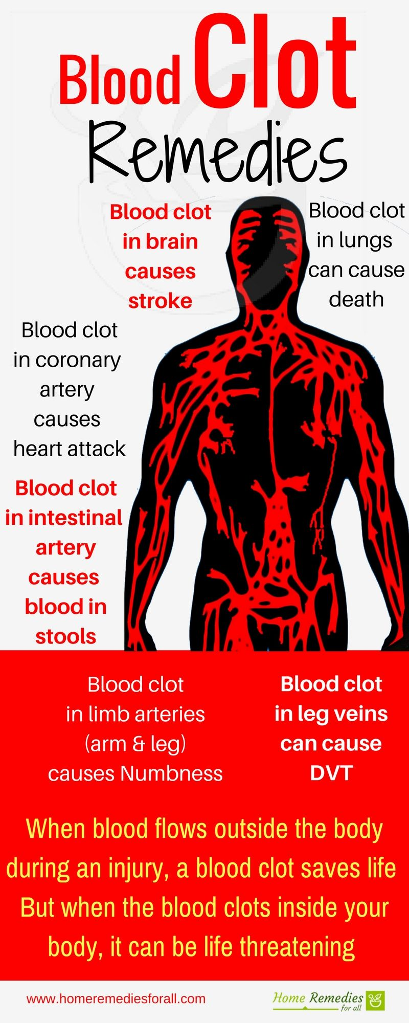 Surprising 7 Home Remedies For Blood Clots Inside Your Body Blood Theyellowbook Wood Chair Design Ideas Theyellowbookinfo