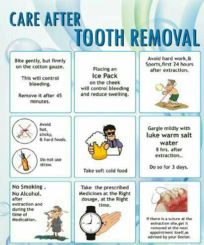 Care After Tooth Extraction Removal Wisdom Tooth Extraction