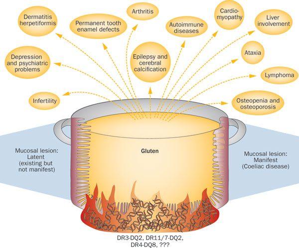 Celiac disease - Nice chart showing multiple, possible ...