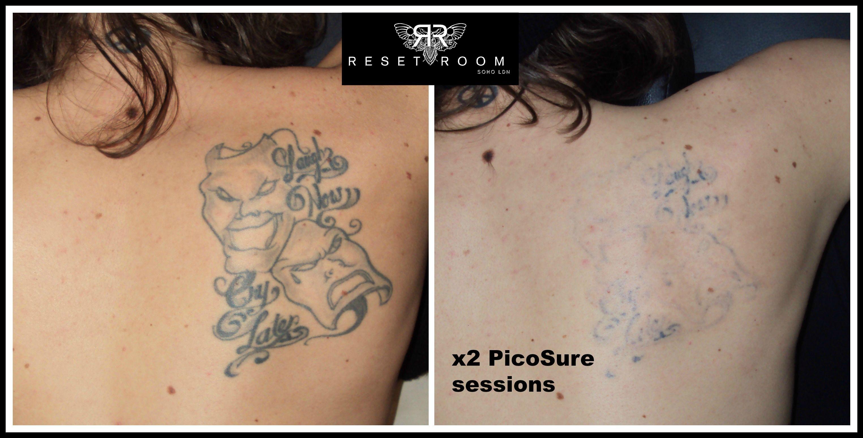 second skin tattoo removal