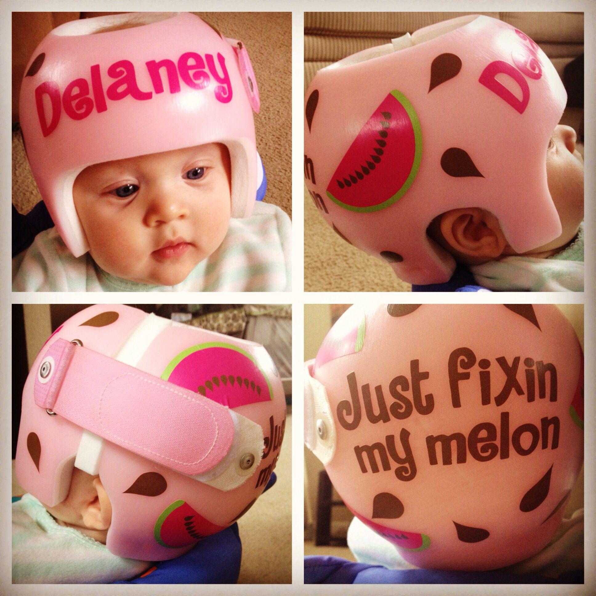 Helmet for plagiocephaly baby helmet plagiocephaly helmets baby shoes doc band kids