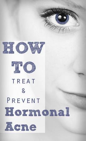 Treating Hormonal Acne