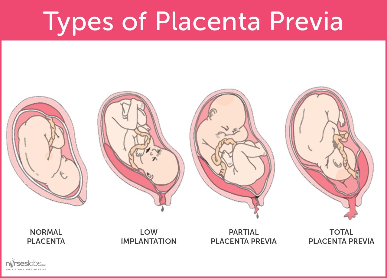 Placenta Previa   Nursing Schools   Ob nursing, Child