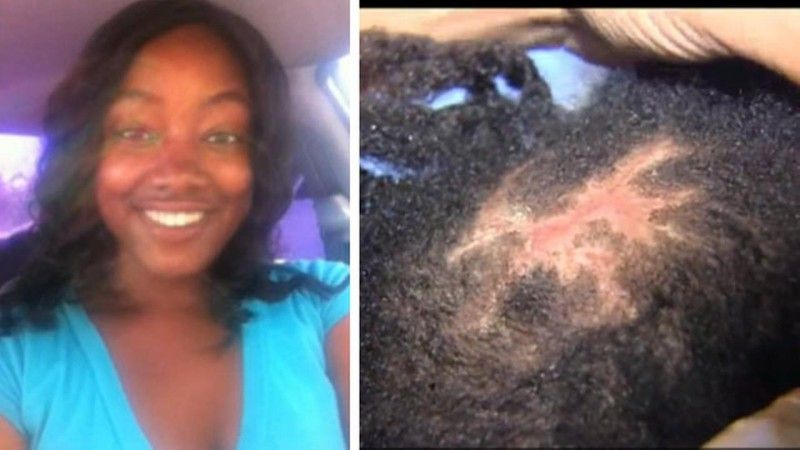 Infected hairweave buyer beware pinterest bald patches hair weaves pmusecretfo Choice Image