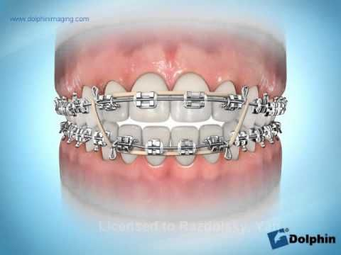 Pin En Dental Related