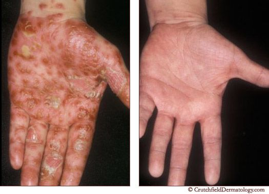 Dating Someone With Psoriasis