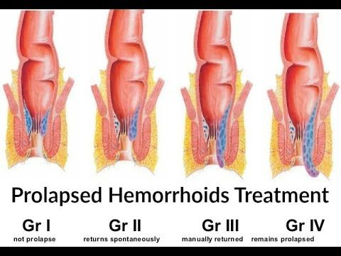 Pin By Leo Reynolds On Baby In 2020 Hemorrhoids Treatment Cure For Hemorrhoids Hemorrhoids