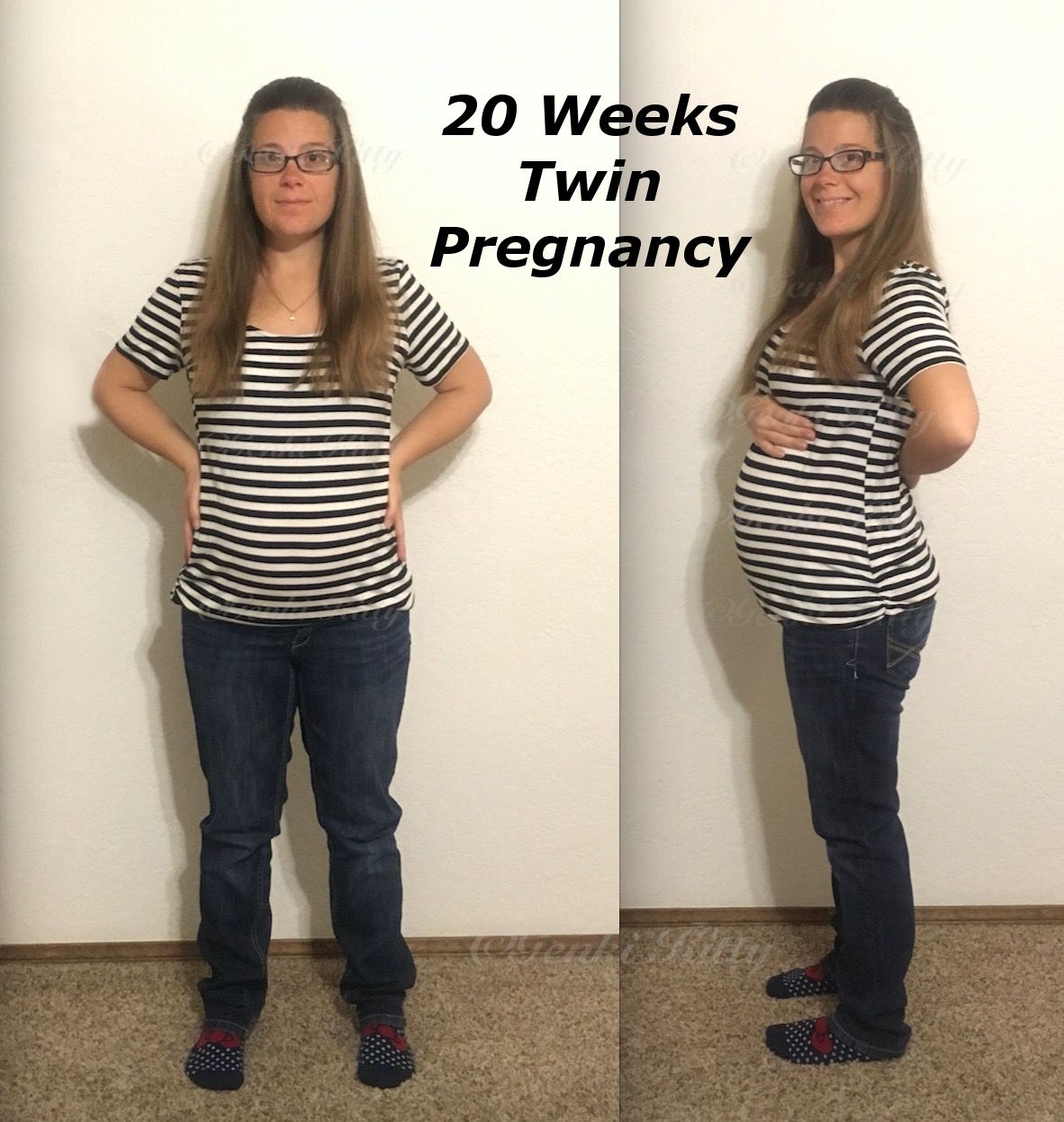 20 weeks twin pregnancy
