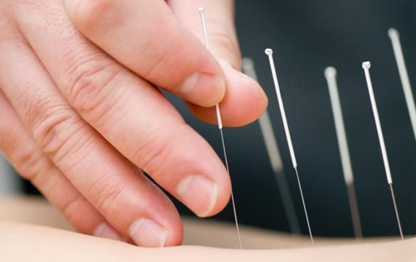 Man With 'Acupuncture Fetish' On The Loose In Malaysia