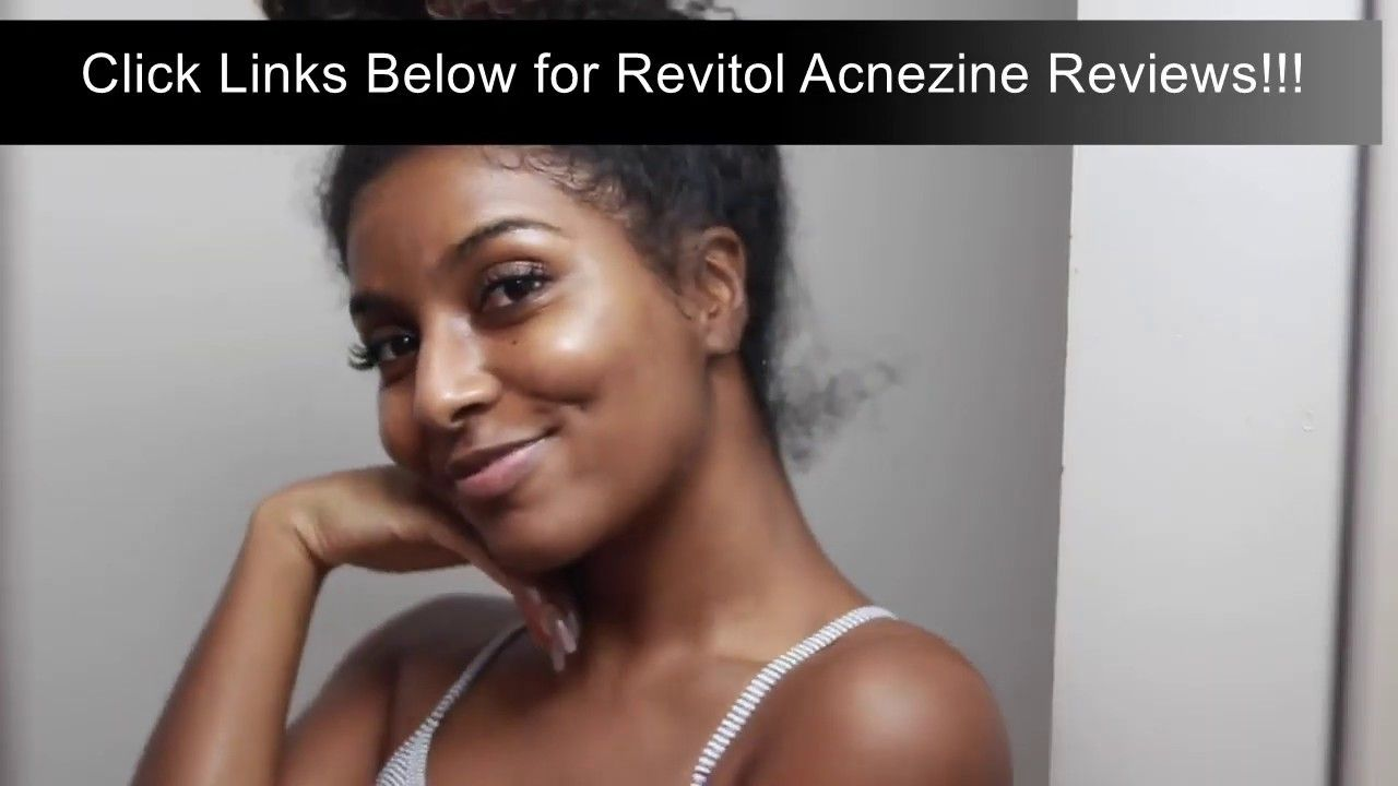 Best Pimple Cream For Women Revitol Acnezine Cream Reviews