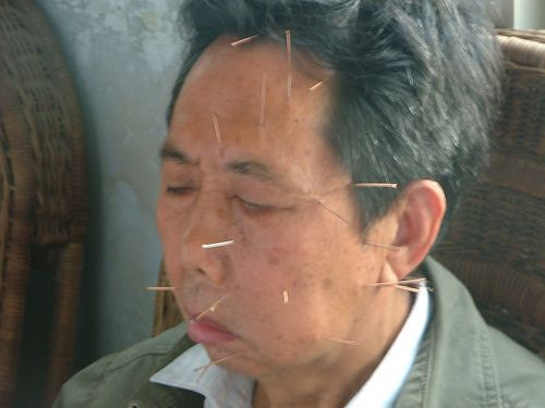 Acupuntura: Caso Clínico parálisis facial | Paralisis facial ...
