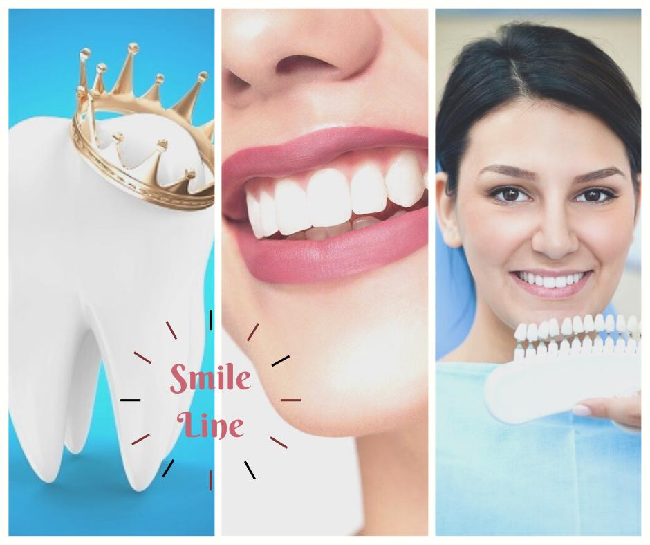 Cosmetic Dentistry Smile Line In 2020 Dental Surgery Smile Lines Cosmetic Dentistry