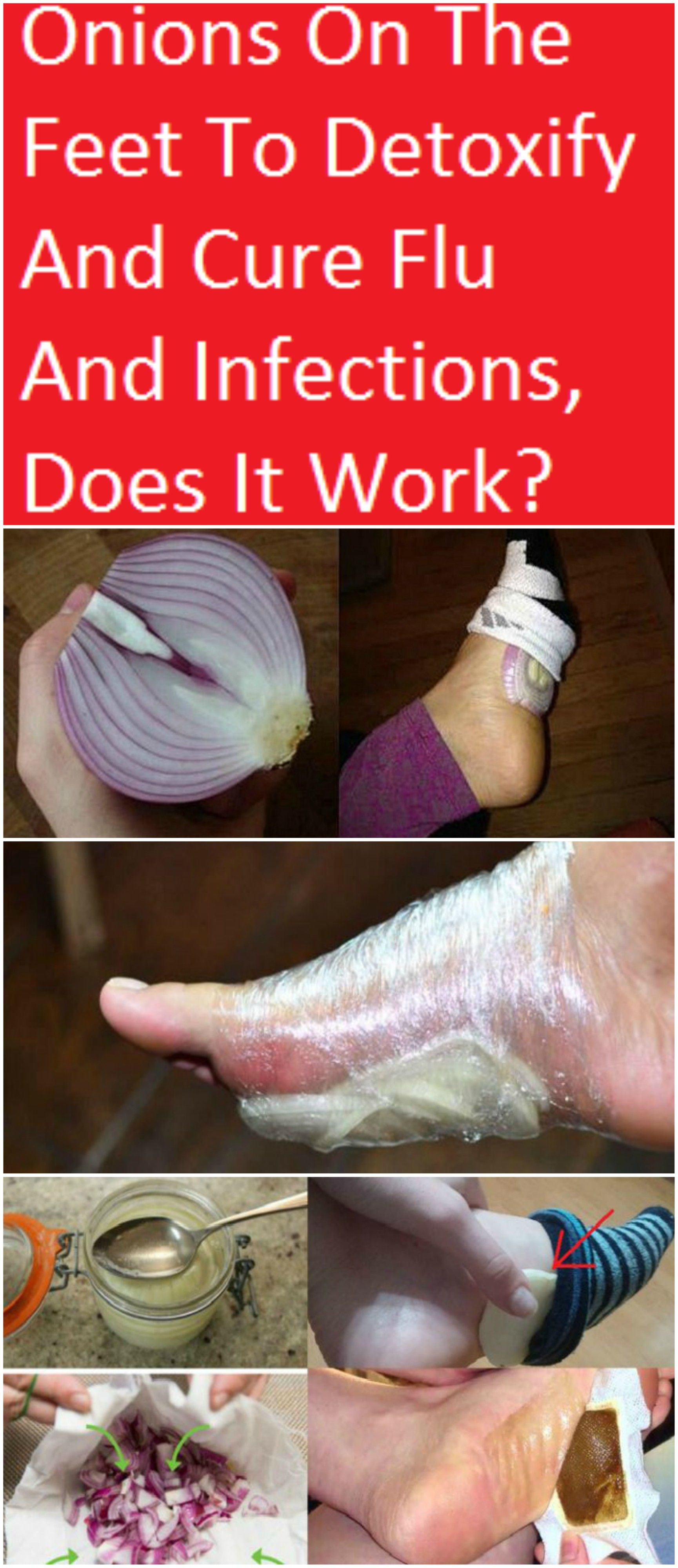 Many people put onions on their feet or in their socks to help get