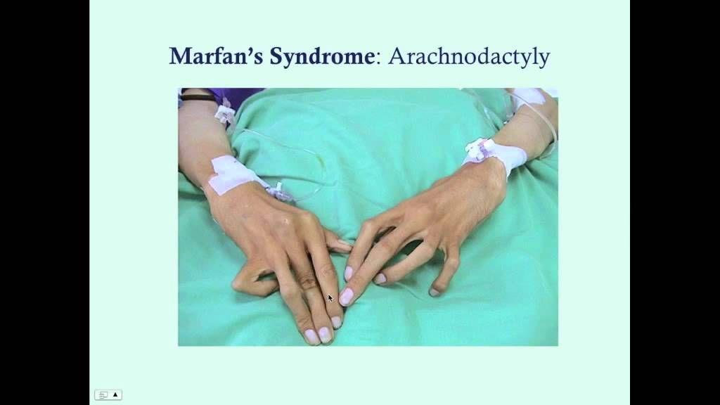 Invitae Marfan Syndrome Test