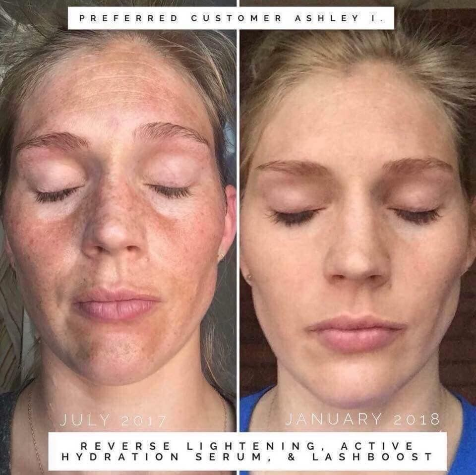 The Reverse Regimen Wipes Away Sun Damage Dark Spots And Dull Skin Rodan And Fields Dull Skin Anti Aging Skin Products
