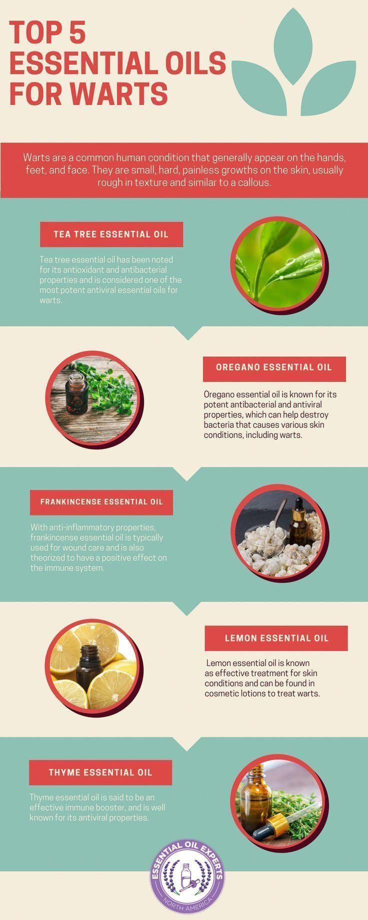 Top 5 Essential Oils for Warts - How to Get Rid of Warts #Natural#Wellness#HealthyLiving#EssentialOils#Holistic#NaturalRemedies#HealthAndWellness#NaturalHealth#HolisticHealth#AllNatural#CleanLiving#HolisticMedicine #essentialoils   #essentialoilsforbeginn #NaturalRemediesForSoreThroat