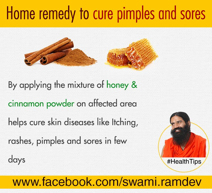 Home Remedy To Cure Pimples And Sores