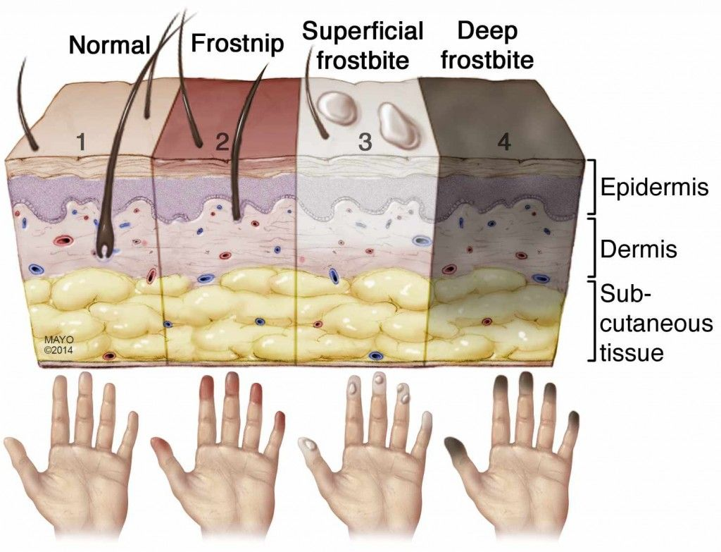 diagram of frostbite wiring diagrams  frostbite is an injury caused by freezing of the skin and underlying nitrogen frost diagram diagram of frostbite