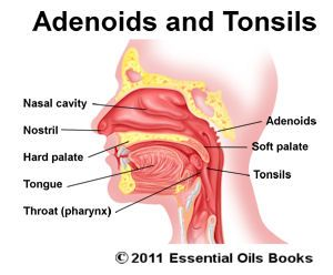 33 best ideas about Adenoides on Pinterest | The two, Children and ...